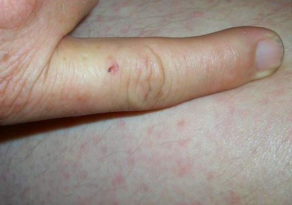 Симптомы заболевания, подхваченного от укуса крысы, могут проявиться даже спустя месяц, когда рана уже успевает зажить.