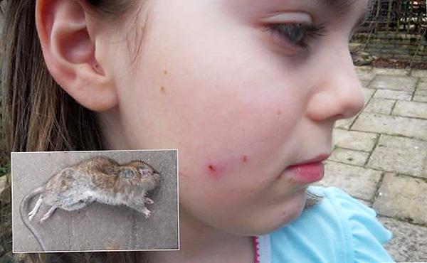 Девочка, подвергшаяся нападению крысы.