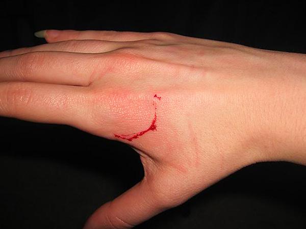 Укусы грызунов характерны наличием двух точек, где рана наиболее глубока - это следы от верхних и нижних резцов.